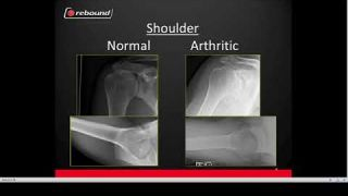 Treatments for shoulder arthritis