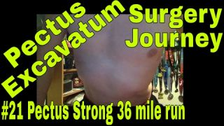 Pectus Excavatum Surgery Journey - Video #21 - 01-22-2017 - 36 mile run & 2nd virtual race